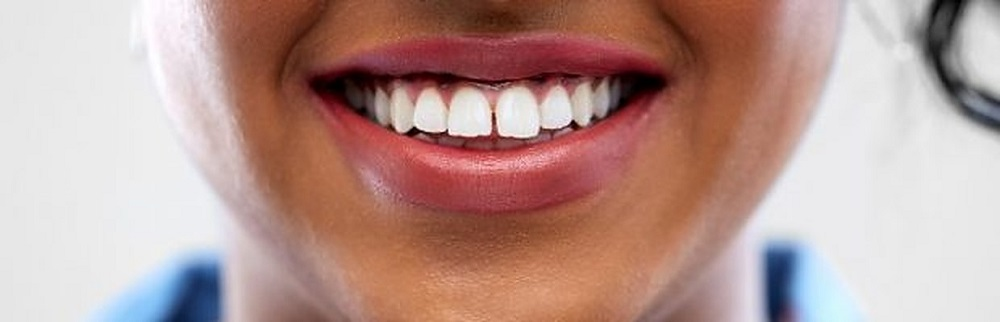 everything you need to know about take home teeth whitening