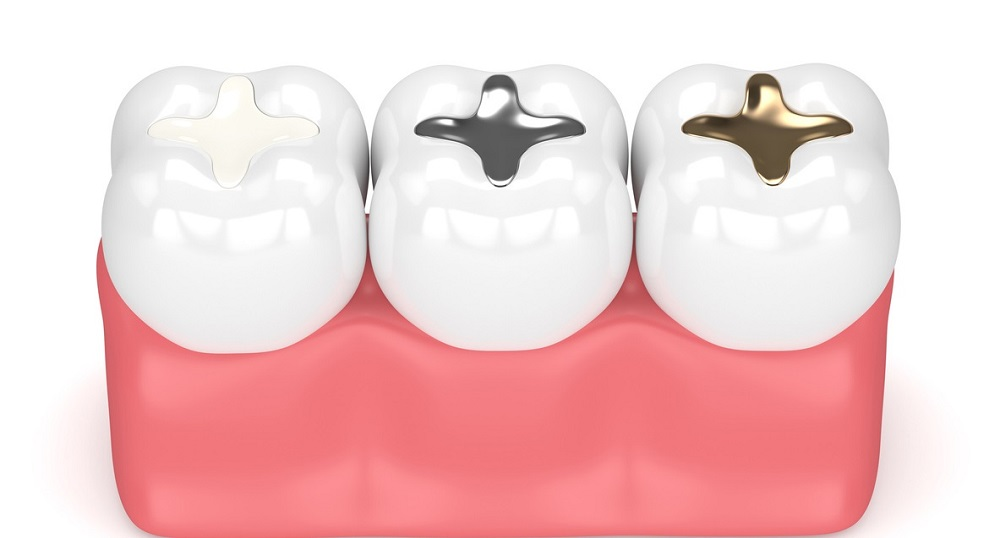 when it comes to fillings you have options in choosing materials