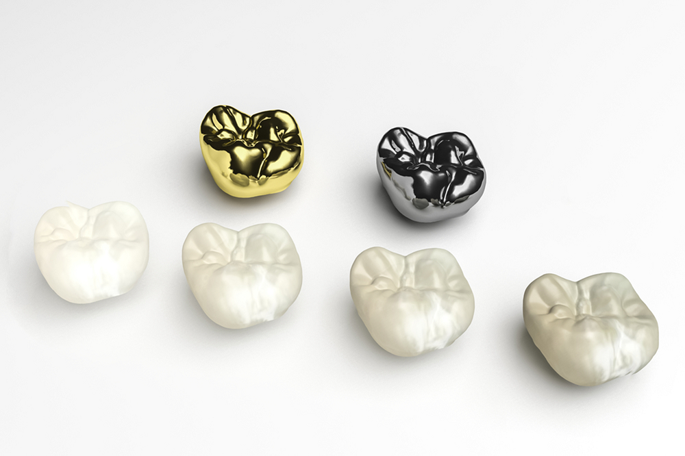 how do dental crowns protect your teeth
