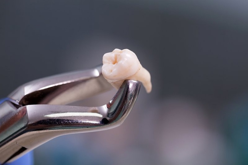 how beneficial is same day procedure tooth extraction and implantation